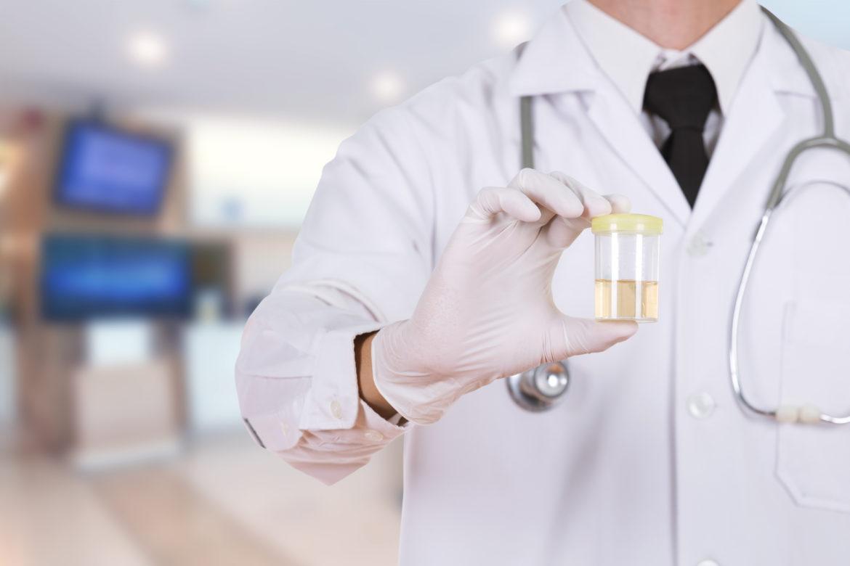 urine drug test, drug testing for employers, employee screening, drug screening for employers